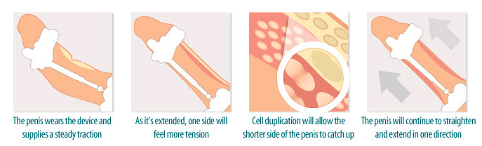 penis-stretchers-curved-penis